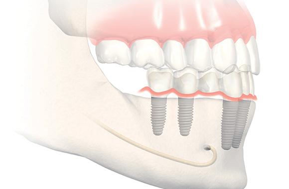 Dentiste Ivry-sur-Seine