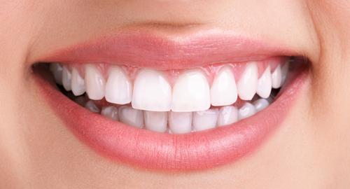 Éclaircissement dentaire Ivry-sur-Seine