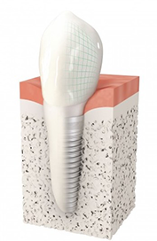 Implant dentaire Ivry-sur-Seine