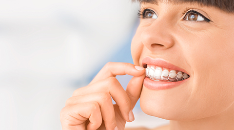 Orthodontie invisible Ivry-sur-Seine